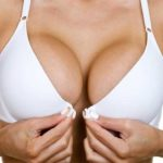 MTF Breast Augmentation